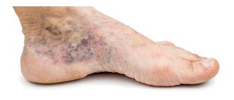 voet-probleem